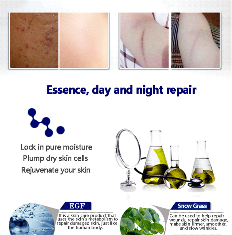 Essential Massage oils Scar Removal Lavender Oil For Pregnant Women Hyaluronic Acid Serum Oil Essential Face Anti Acne