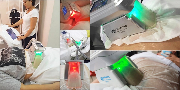 PZLASER high quality cryo pad antifreeze membranes 110g cryotherapy anti freeze membranes Coolslimming machine use
