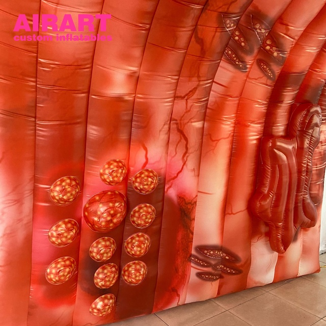 Giant Inflatable Colon lesions advanced colon cancer