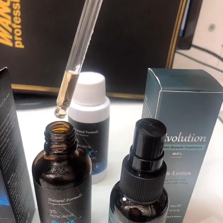Beste Nachwachsen Der Haare Öl Minoxidil 5% Nachwachsen Haar Öl für Männer