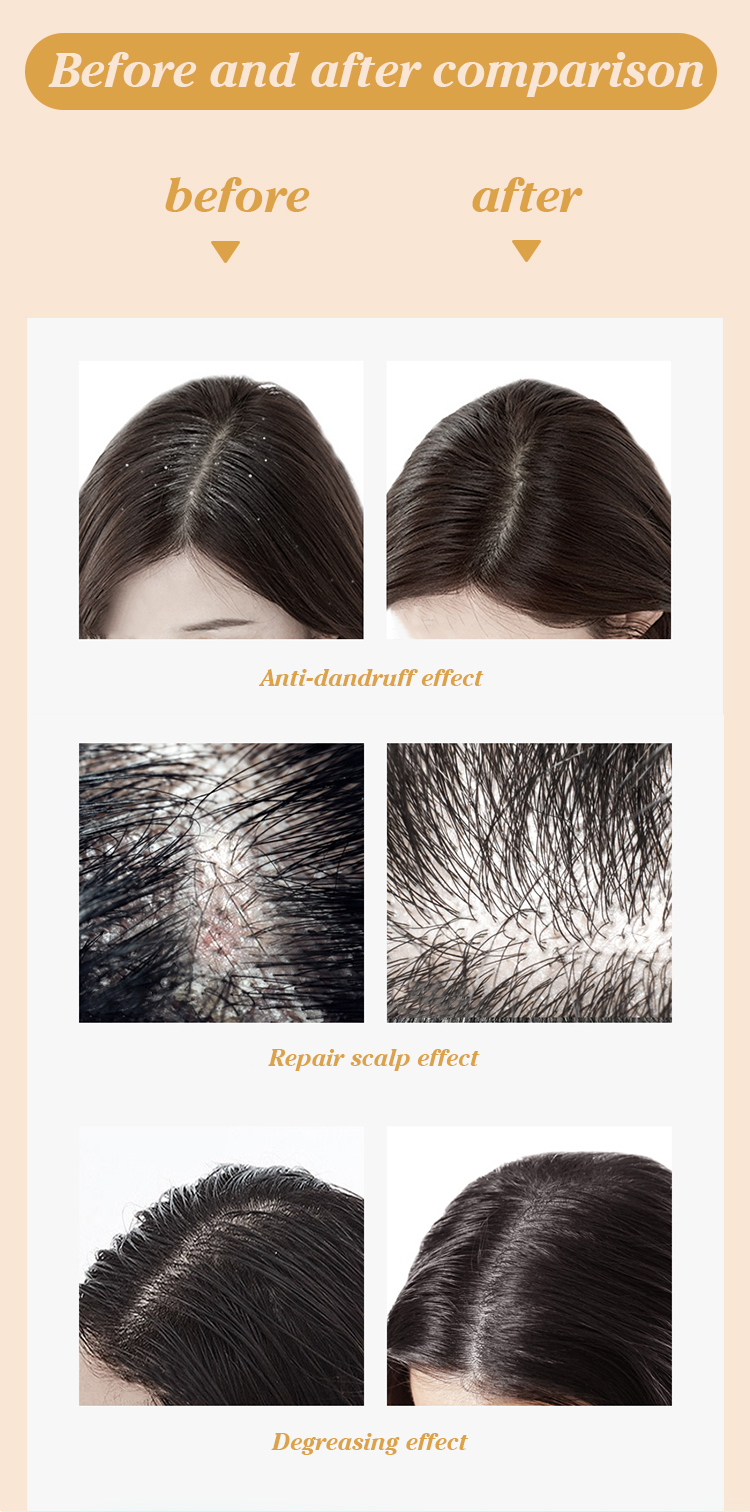 Private label Anti breakage deep conditioning keratin collagen treatment smoothing hair mask Chinese factory supply