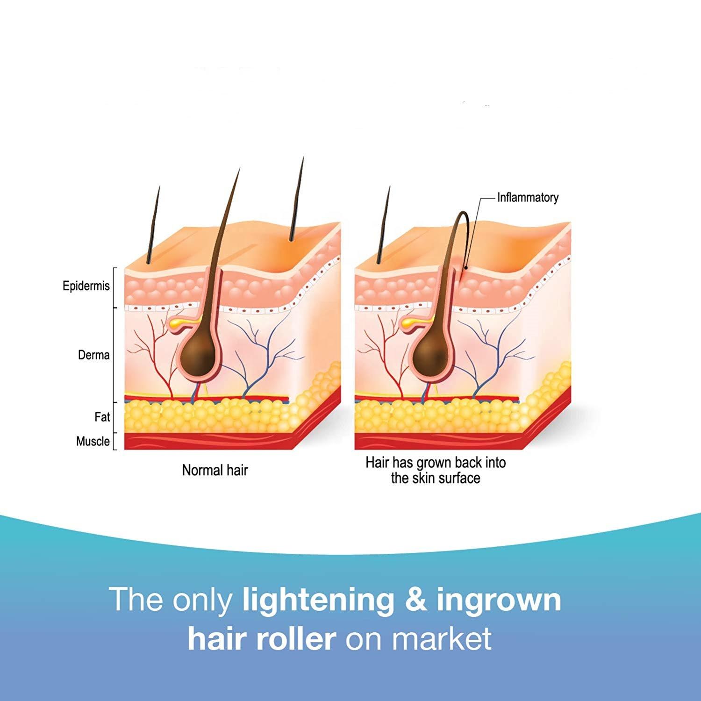 Private Label Dark Spot Remover Roll On Formula, Treats Ingrown Hairs and Razor Burns Razor Bump Stopper