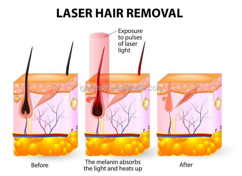 laser hair removal theory