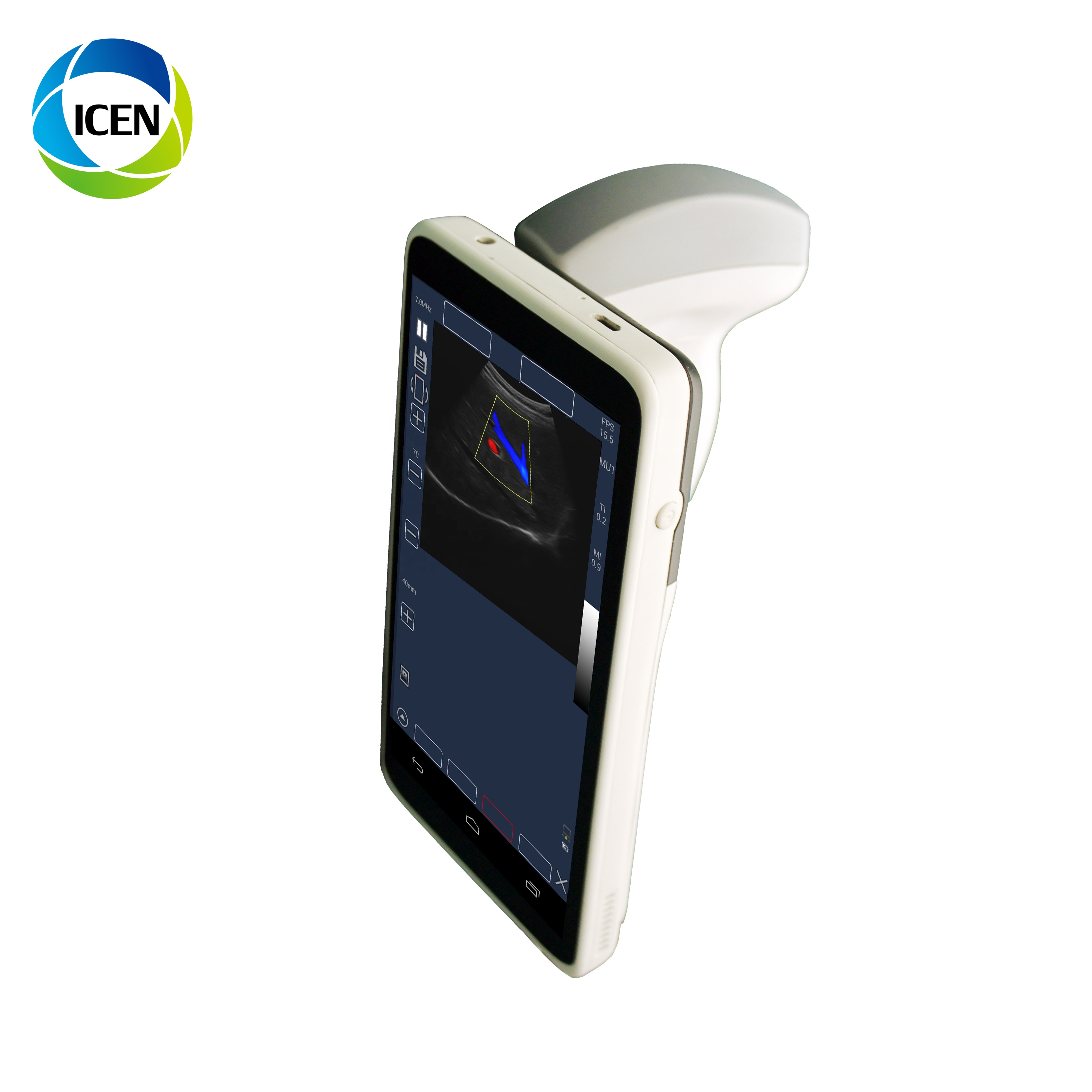IN-AMU3 Cheapest Android System 128 Elements Probe Portable Ultrasound Scanner