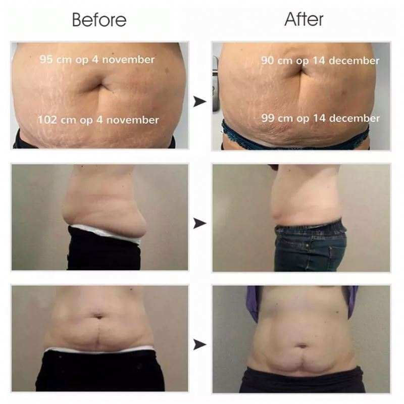 Cryo Salon Use Cryolipolysis Fast Body Slimming Beauty Device Machine