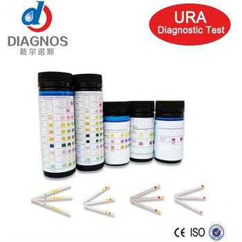 análisis de orina y sangre para diabetes