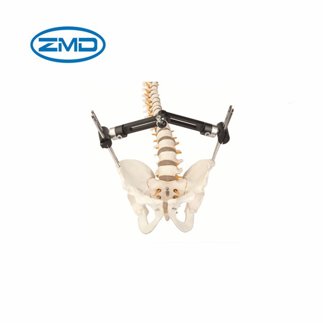 Pelvic Orthopedic External Fixator