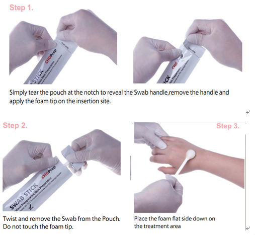 Surgical Instrument & I V Supplies Sterile Applicator Chg ...