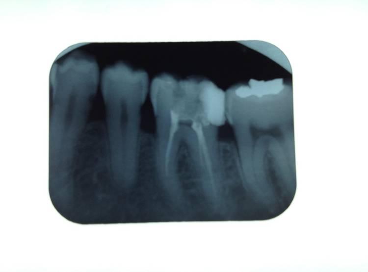 Yestar Dental Film X-ray Intraoral D-speed/e-speed X-ray