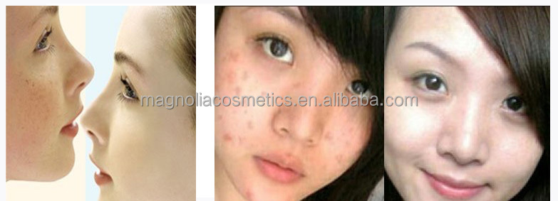 Anti-dark spots cream freckle removing cream