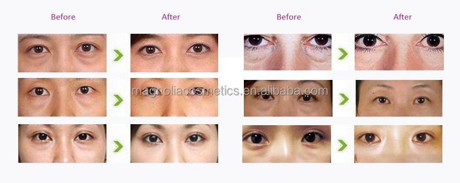 Herbal Cosmetic Best Remove Dark Circle Eye Cream