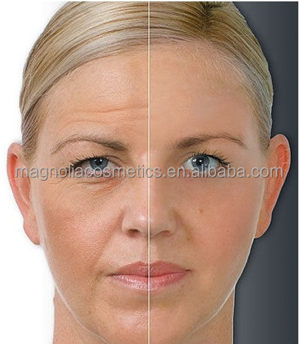 Best Results Skin Whitening Face Cream for Pigmentation