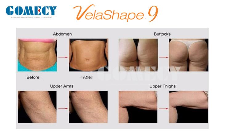 GOMECY Vacuum Velashape Device Vela Shape Velashape Price Velashape Cellulite Reduction