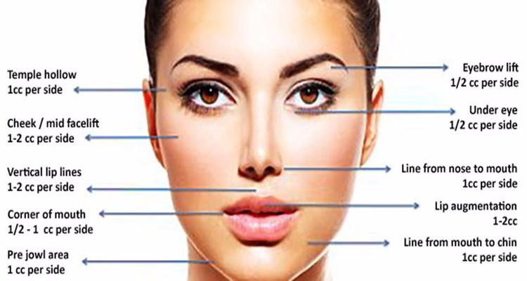 inject balloon filler lift facial