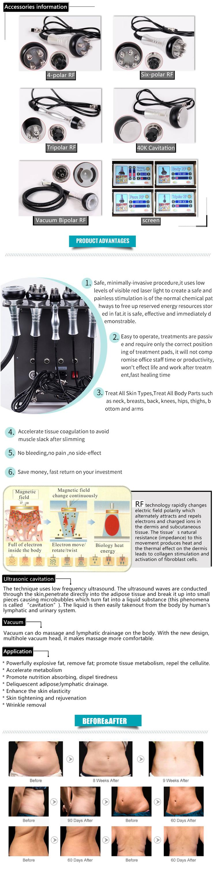 5 In 1 Penurunan Berat Badan Kavitasi Non-invasif RF Ultrasonic Liposuction Cavitation Melangsingkan Mesin untuk Dijual