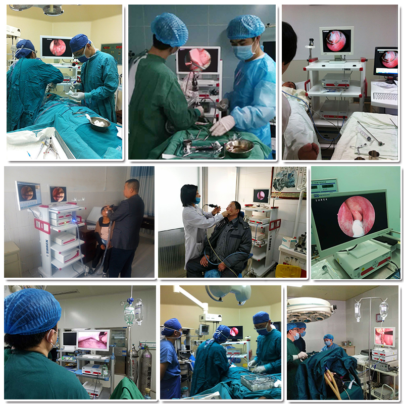Sugery Full HD Video Recorder Per ORL, ginecologia, Ostetricia e ecc