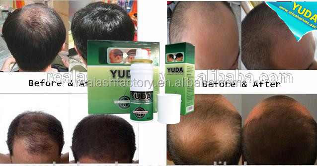 Best Hair Loss Products Natural