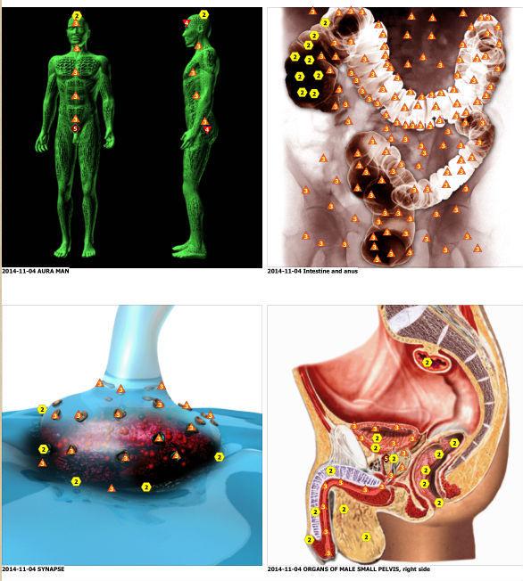 Αποτέλεσμα εικόνας για bioresonance human