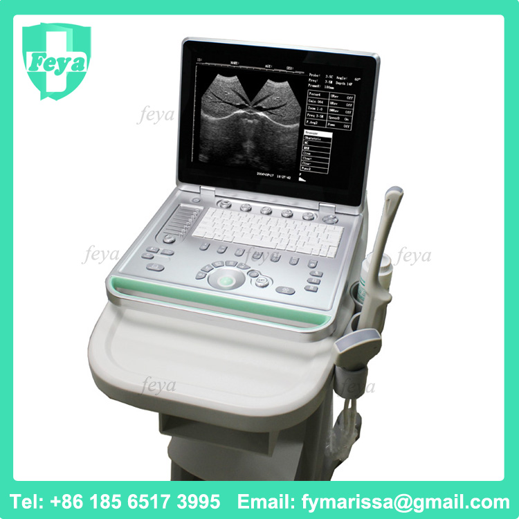 FY-SS-7 China Portable Laptop Ultrasound Machine Price Sale