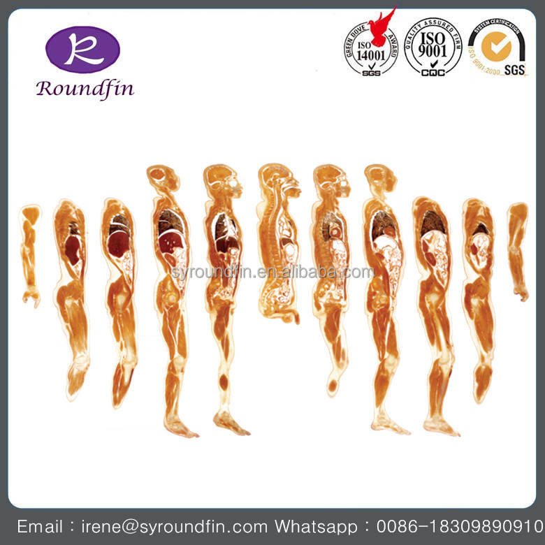 Resin silicone whole body specimen transparent slices