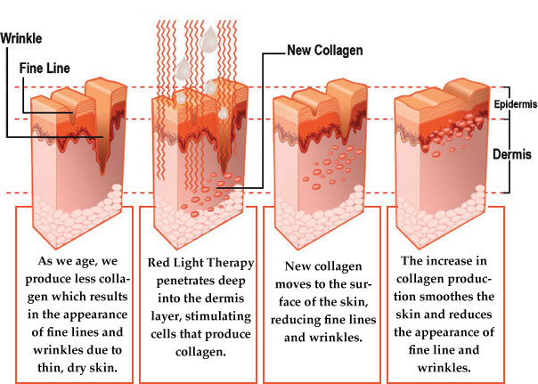 Anti aging light therapy products beauty angel red light therapy planet fitness