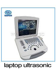 Medical Pachymeter Full Digital Ophthalmic A/B สแกนอัลตราซาวด์ Eye Scanner