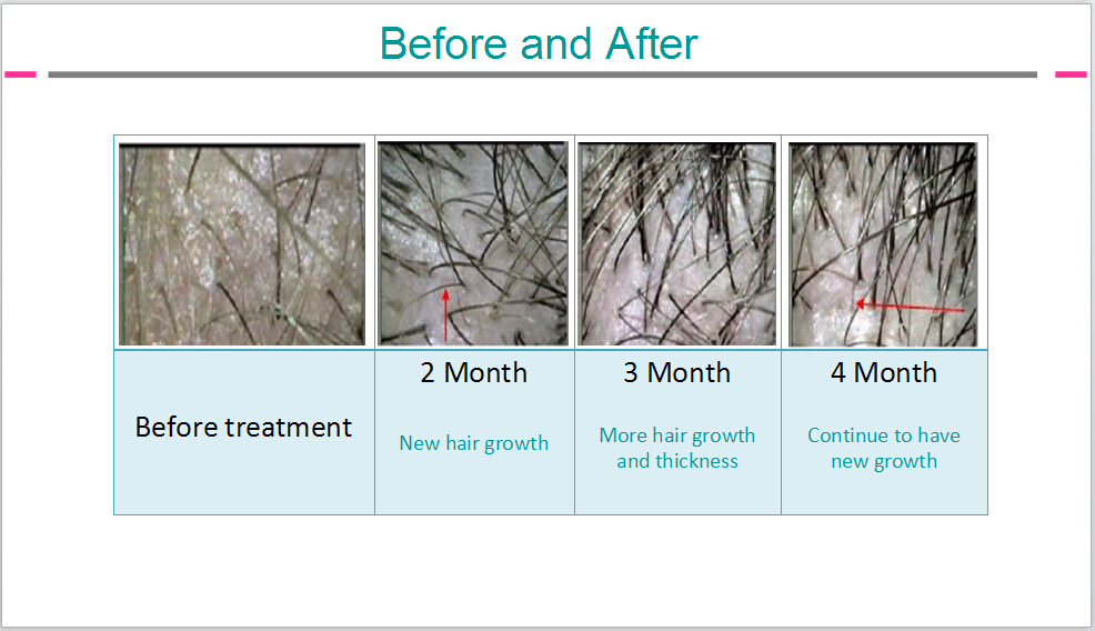 Increase hair growth after laser treatment
