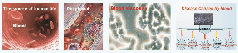 Hemotherapy Laser High Blood Sugar Viscosity Cholesterol Lower Level Therapy Laser Watch
