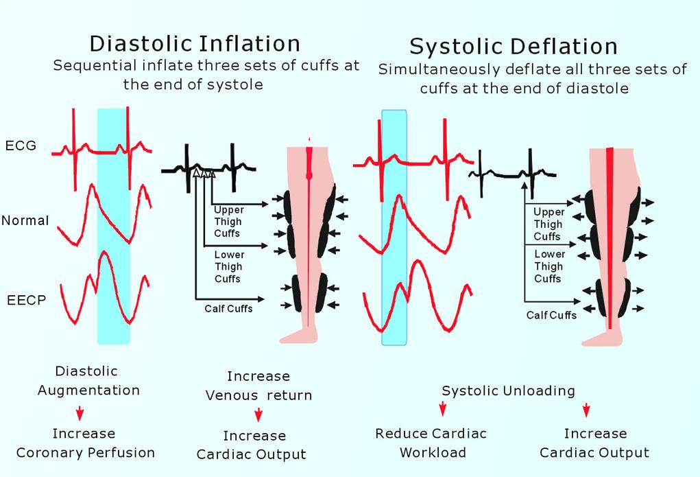 Kalp hastalıkları için EECPS makinesi