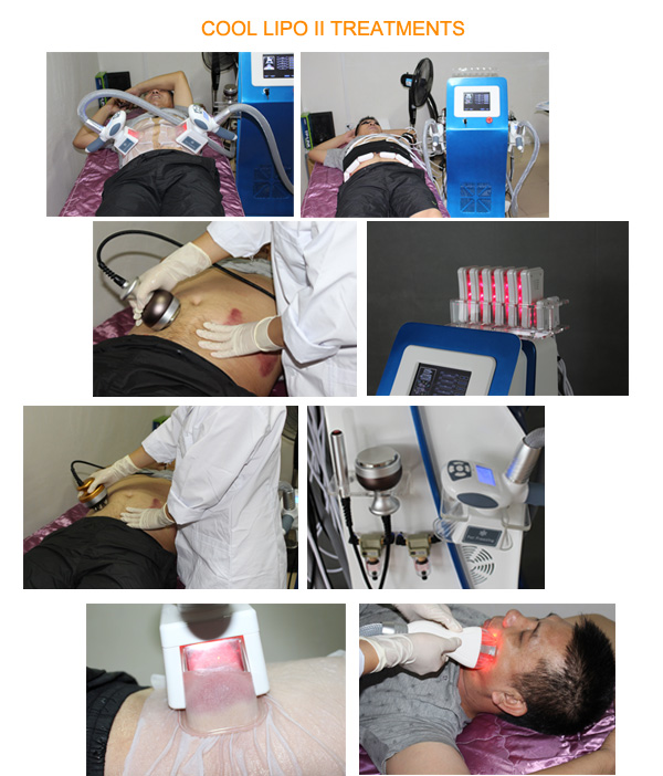 Cool Tech Body Countouring Lipo Cavitation Ultrasound Shape Rf ...