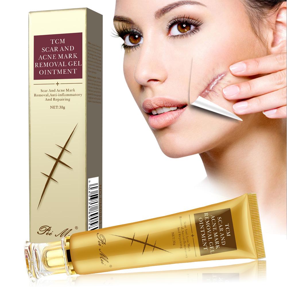 Peimei Kin Repair Whitening Scar Treatment Acne Removal Cream For