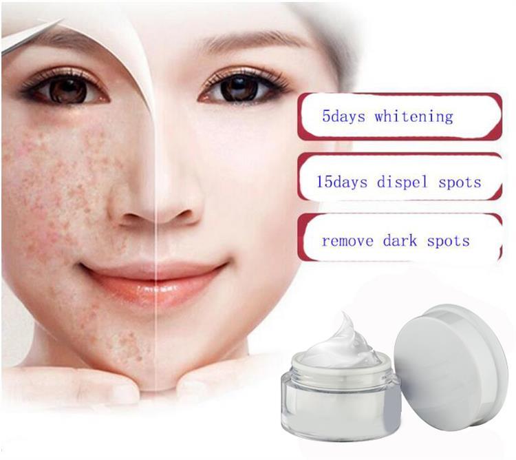 Private Label Großhandel Gesichts Hautpflege Schönheit Gesicht Entfernen Pigmentierung Flecken Bleaching Anti Beste Sommersprossen Entfernen Creme