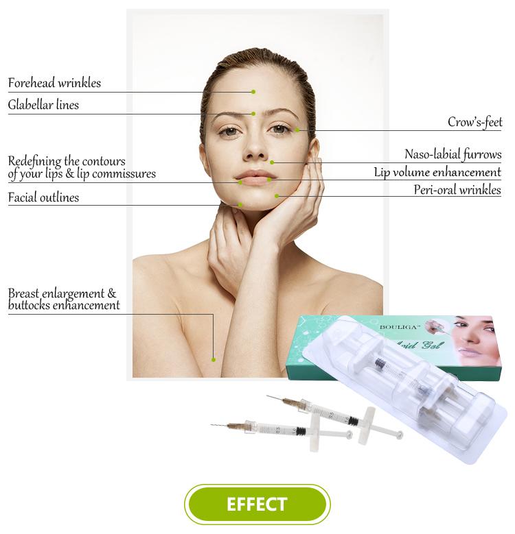 5.0 ml/syringe Cross Asam Hialuronat Gel Injeksi untuk lip enhancer