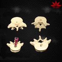 High quality as a gift give doctor model lumbar vertebrae penholder
