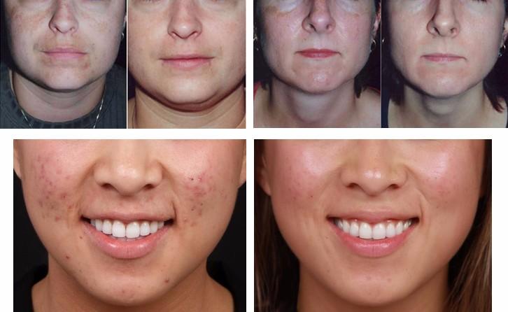 19 in 1 multifunction dermabrasion facial steamer ultrasonic skin scrubber beauty salon equipment