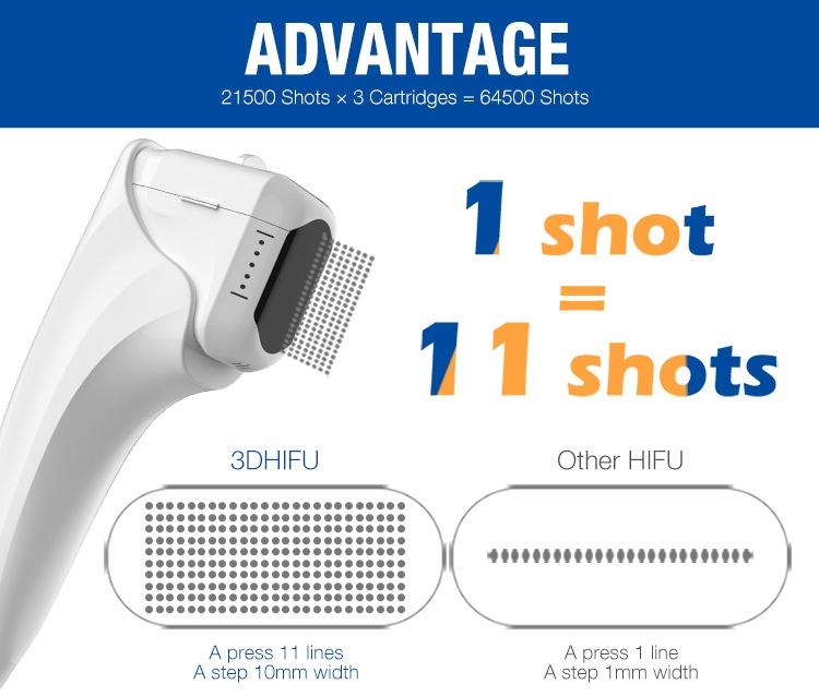 Smas portátil mini máquina hifu face lift e slimming do corpo