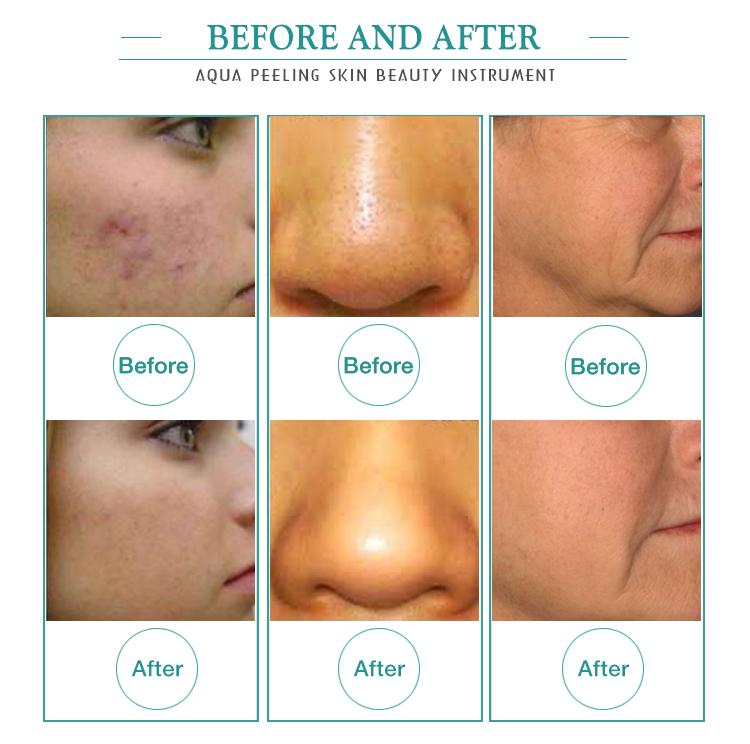 Chine nouveaux produits machine de beauté propre pour le visage et la peau aqua