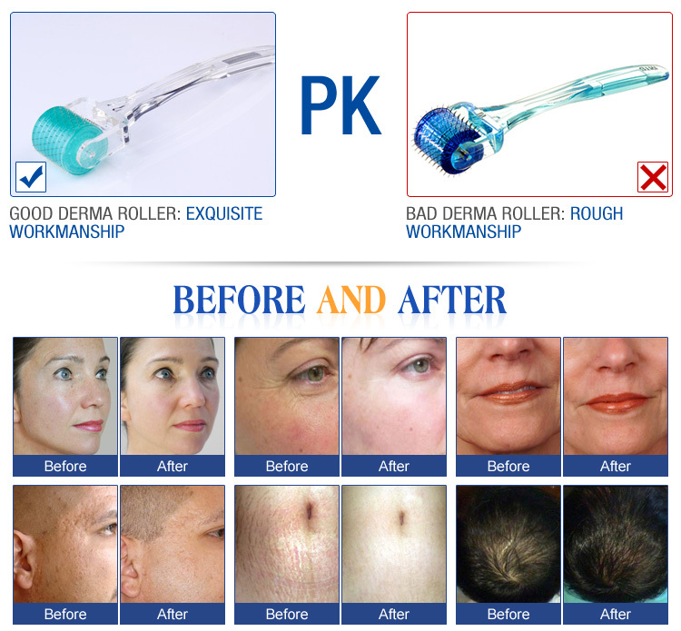 microneedle face roller system