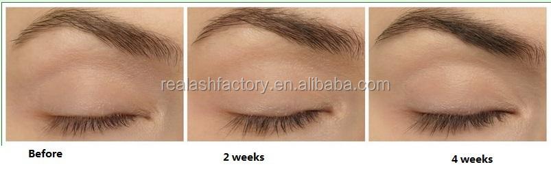 Hot New Products For 2015 World Best Eyelash Growth Serum Seeking ...