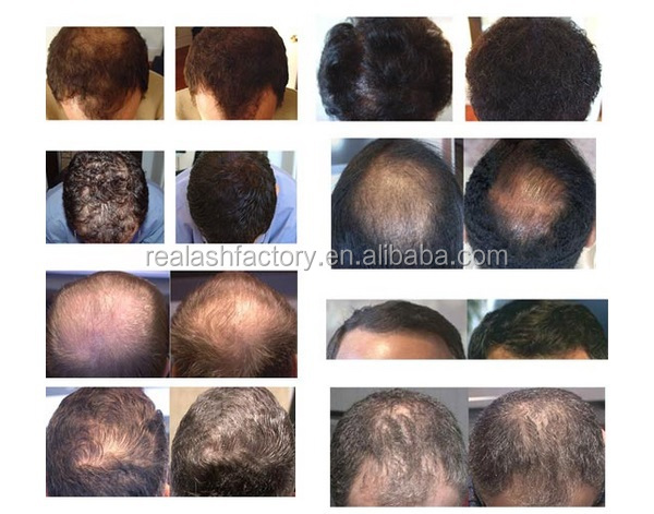 best hair loss treatment 2016