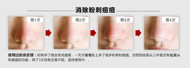 Free Shipping Peel off Blackhead removal Facial Mask
