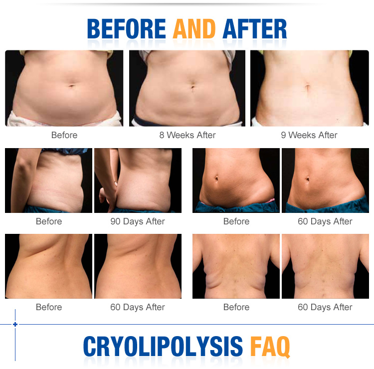 Ice Therapy Freeze Fat Cryotherapy Cryolipolysis Weight Loss - Buy  Cryolipolysis Weight Loss,Freeze Fat Weight Loss,Cryotherapy Weight Loss  Product on