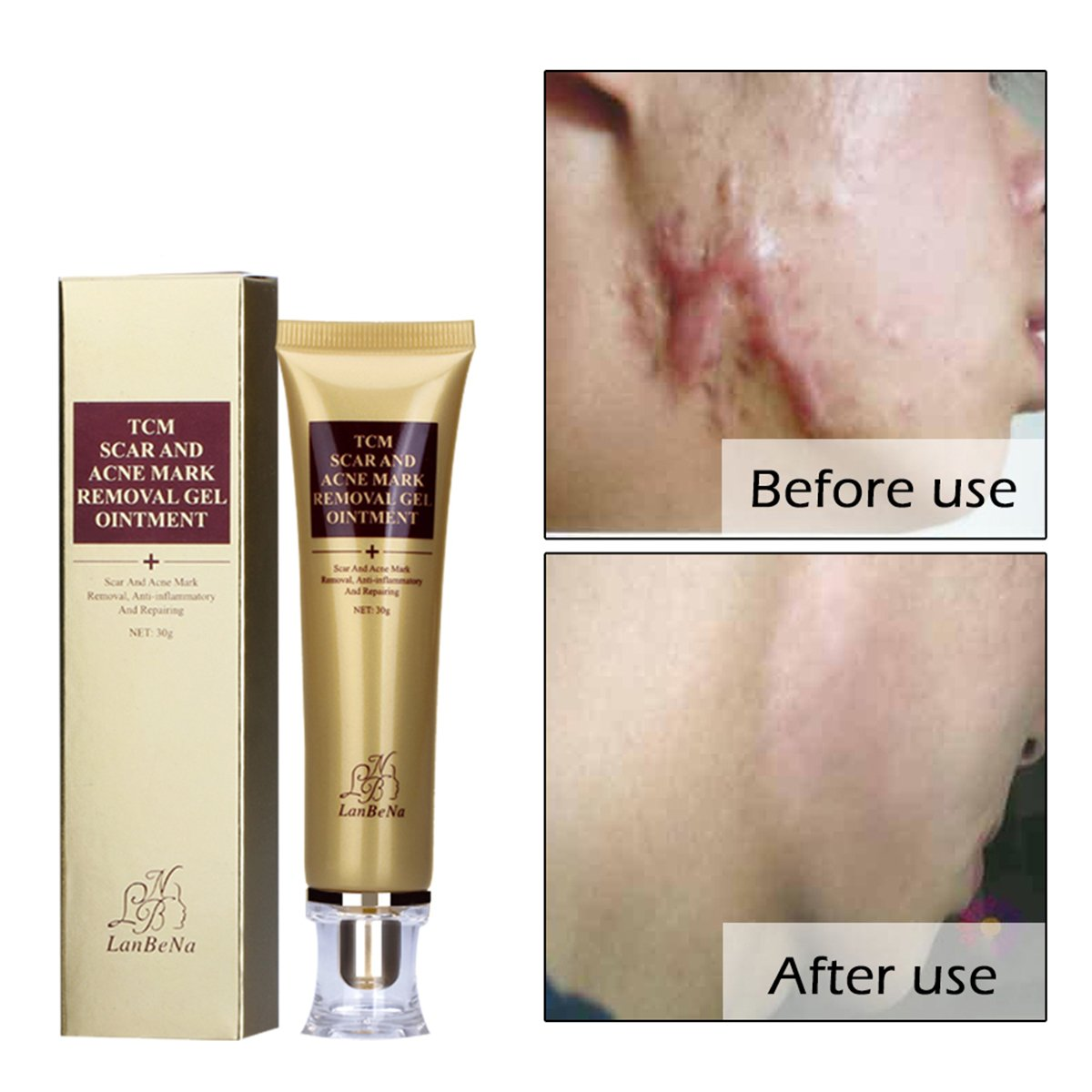 Amareu Acne Scar Removal Cream Skin Repair Face Cream For Burns Cuts Operation Stretch Mark Remover Acne Scars Treatment