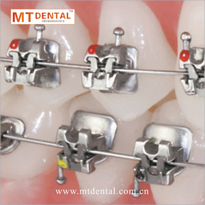 MT dental best price self-ligating brackets roth/MBT 0.022/0.018