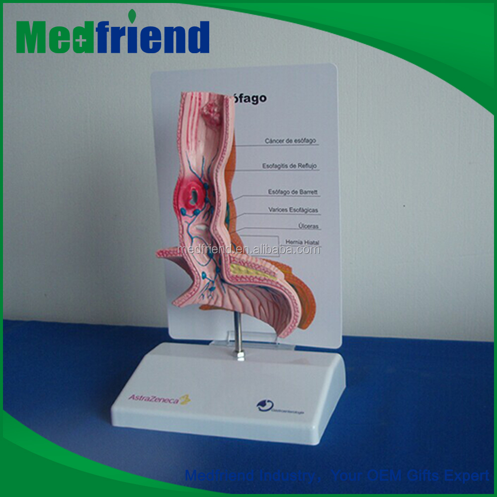 MFM017 High Quality 3D Stomach Anatomy Modoel