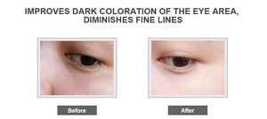 Korean Eye Bag Removal Cream, Korean Eye Bag Removal Cream Suppliers