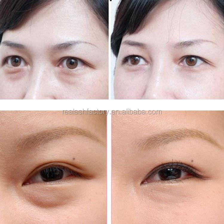Eye Bag Removing Instantly Anti Wrinkle Multiple Best Eye Creams ...