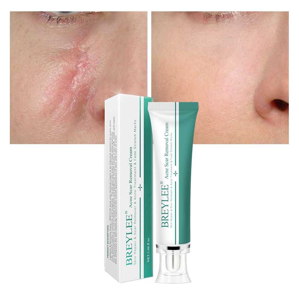 BREYLEE acne mark scar removal <strong>cream</strong> free shipping