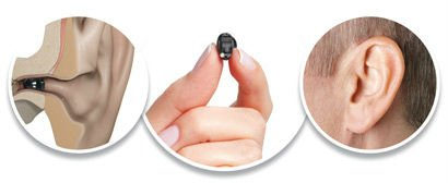 Completely Invisible In The Canal Digital Hearing Aid