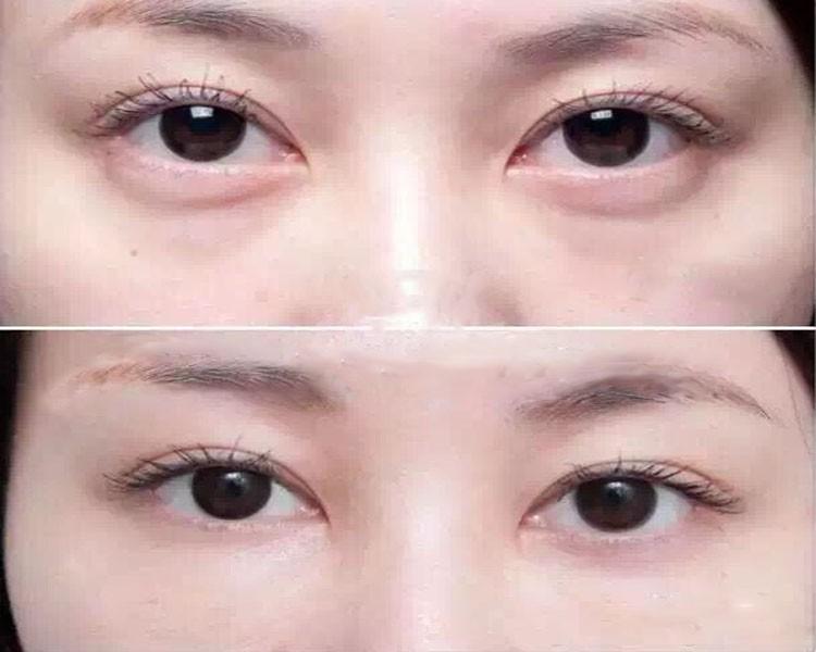 Instant Face Lift Anti Wrinkle Eye Bags Removal Better – Fondos de